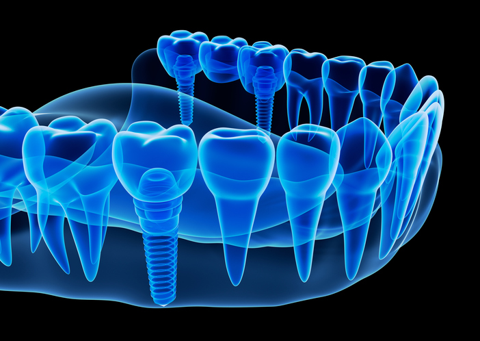 Diagram of Dental Implants in Portland, OR